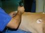 Endoskopska rizotomija - pacijent iz Engleske